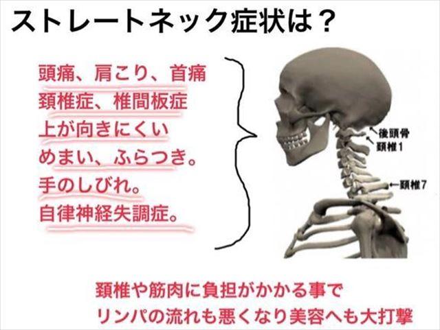 出典:http://signof.me/ch/anna_shimada/entry/333209